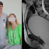 ВКрасноярске медработники удалили изтела 40-летней женщины «аномального близнеца»