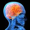 Ученые: Скопление жира вмозге может вызвать болезнь Альцгеймера