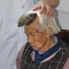 В КНР у87-летней бабушки вырос 13-сантиметровый рог