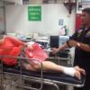 Российская туристка была ранена в Паттайе шальной полицейской пулей