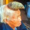 Пожилая китаянка с огромным рогом на голове шокировала медиков