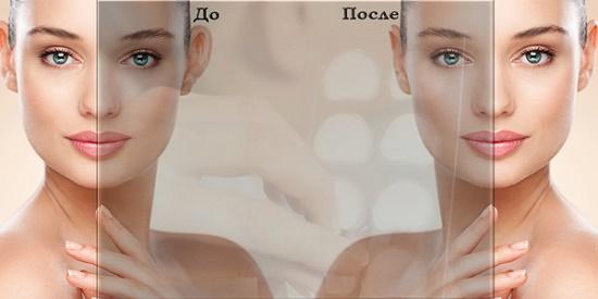 Исправление формы ушной раковины силиконовым корректором. Маирс – эстетическая коррекция