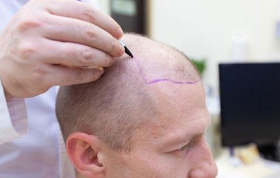 Медицинский туризм в Турции процветает: доходы от пересадки волос превысила 1 миллиард долларов